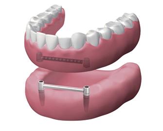 Dentadura extraíble
