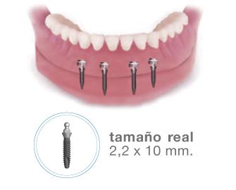 Mini implantes